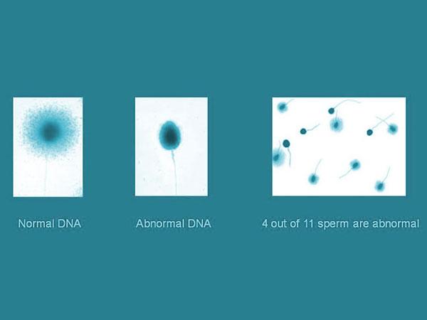 dna-fragmentation-img1-delhi-ivf