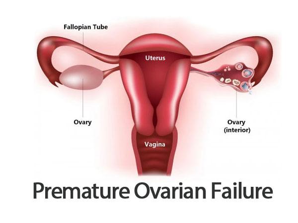 premature-ovarian-failure-img1-delhi-ivf