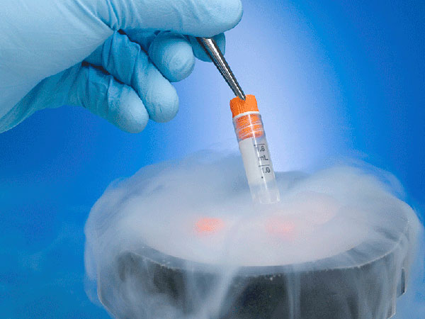 sperm-freezing-img1-delhi-ivf